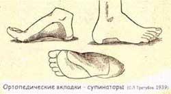 Как сделать ортопедическую обувь своими руками