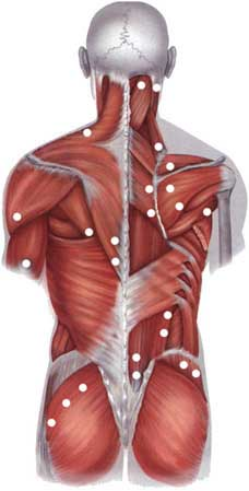 Остеохондроз боли в мышцах