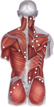 Боли в шее, болит шея и голова не поворачивается, боль в мышцах руки и спины, причины боли в шее и затылке