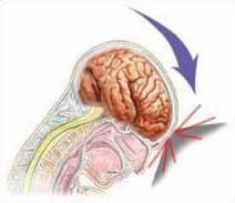 причины боли в руке, остеохондроз шейного отдела позвоночника, боль в руке, боль в шее, боль между лопаток, слабость в руке, причины шаткости при ходьбе, головокружение, причины шума в ушах, вертебробазилярная недостаточность, повреждение межпозвонкового диска