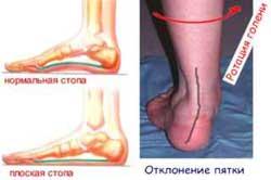 Плоскостопии-голеностопный сустав дегенеративно-дистрофические заболевания суставов реферат
